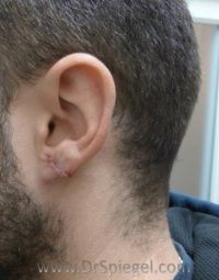 Ear Lobe Repair