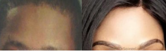 Forehead Contouring