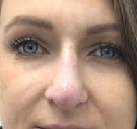 Non-Surgical Rhinoplasty / Nose Filler