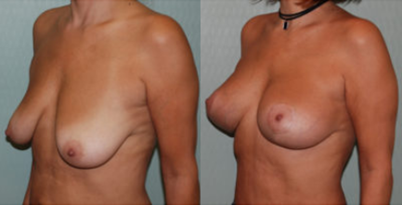 breast implant boston